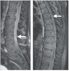 Stem Cell Spinal Tumor